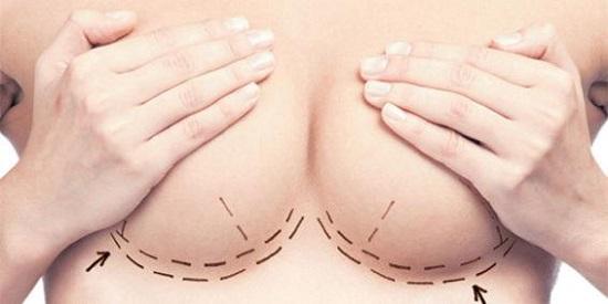 elevación-de-senos